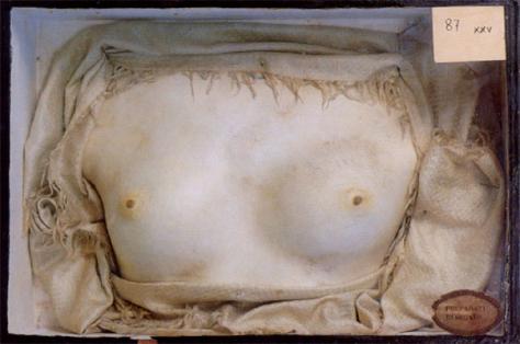 dr-girolamo-segato-breasts