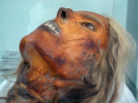 dr-girolamo-segato-head