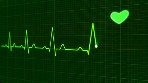EKG art